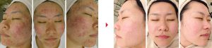 facial_acne_ba01_big